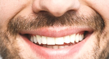 Close up of a man with a chipped front tooth.