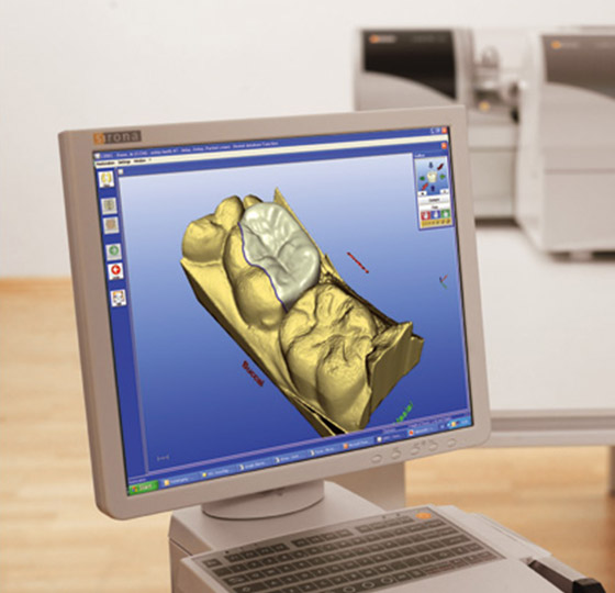Digital imaging using CEREC system